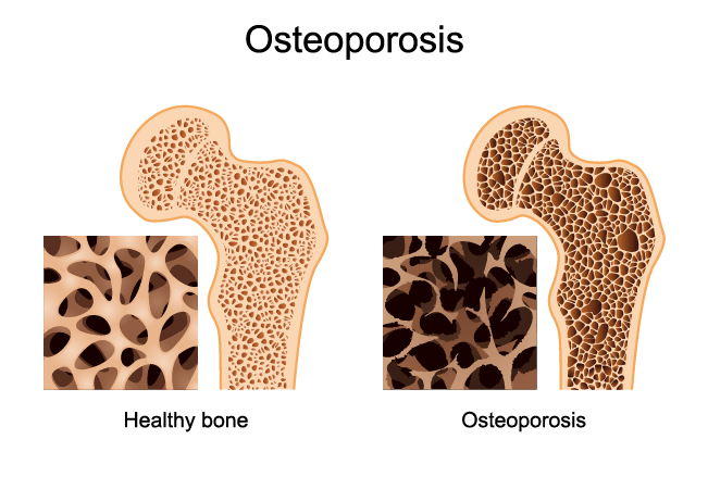 bone loss and Osteoporosis