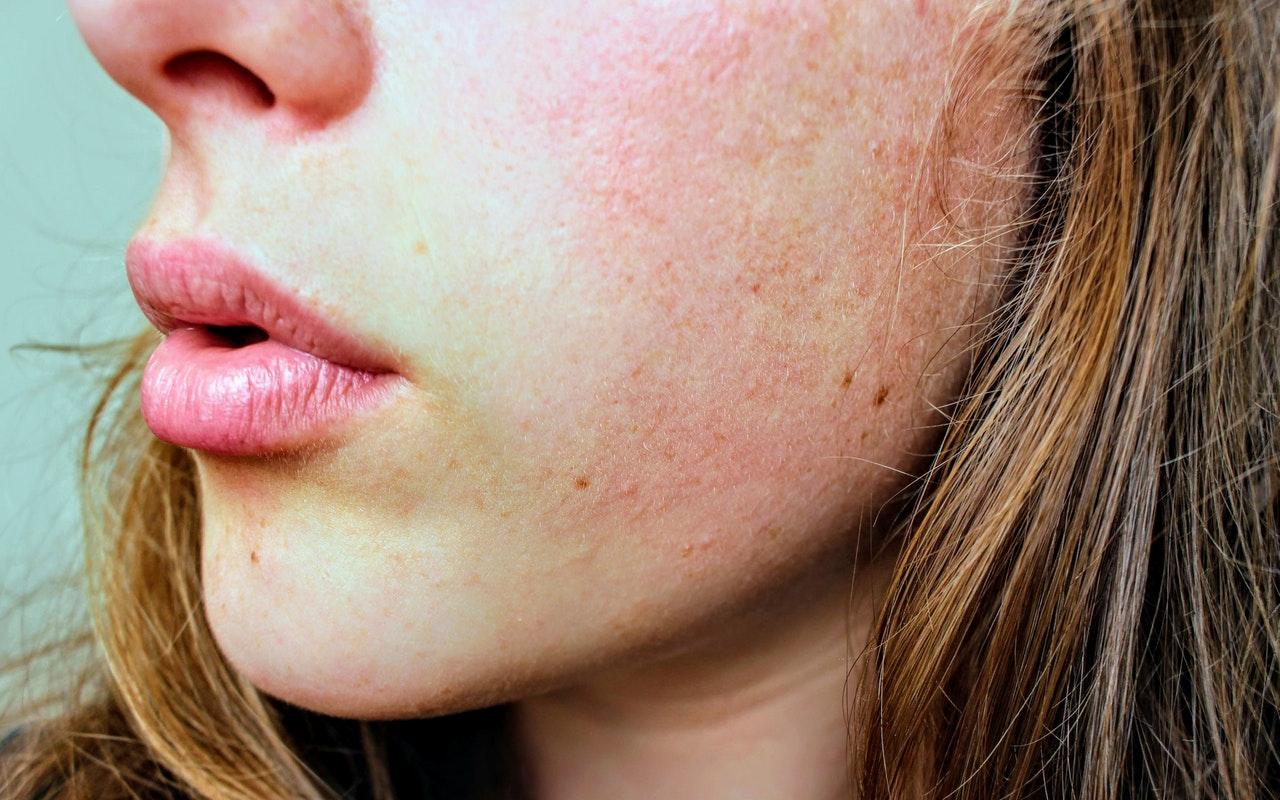 Dermatitis Herpetiformis treatment skin rash